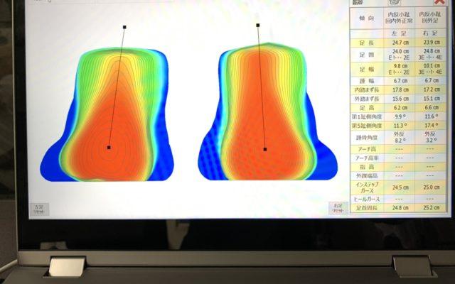 距骨調整の治療効果を数値化して蓄積