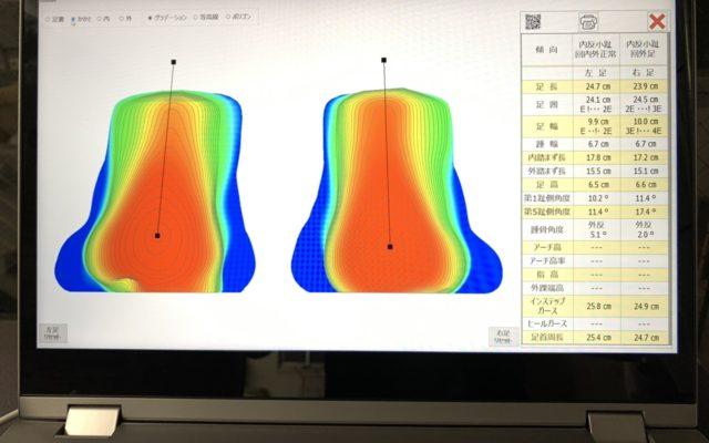 距骨調整の治療効果を数値化
